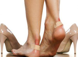 Ayakkabı Vurmasına Ne İyi Gelir?